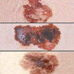 Melanoma Samples